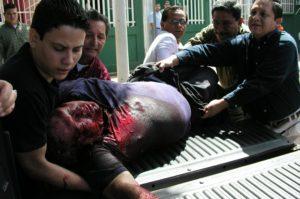 Todavía con vida, Carlos Guadamuz es llevado al hospital. Murió en el camino. / Cortesía Bolsa de Noticias