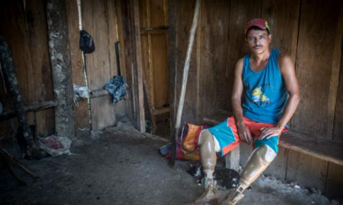 Al campesino Juan Lanzas la violencia perpetrada por la Policía Nacional le arrancó las piernas. Hoy trata de rehacer su vida. LA PRENSA/Oscar Navarrete