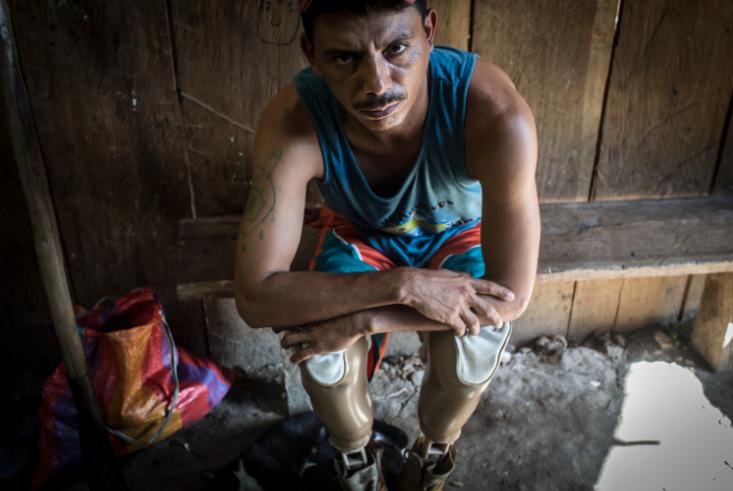 Un especialista en la fabricación de prótesis le donó las dos extremidades artificiales que lo sostienen en la vida. LA PRENSA/Oscar Navarrete